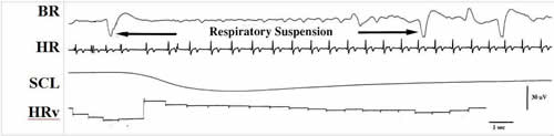 eeg_respiratory_suspension37367